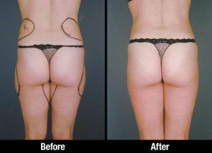 Thigh Lipo Before After