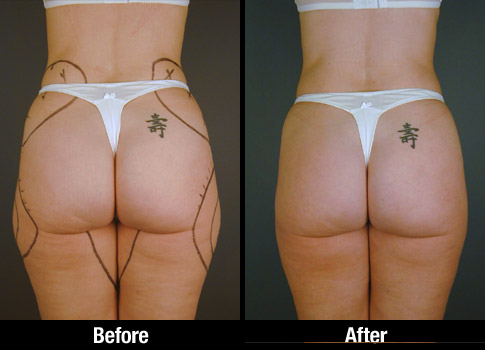 Click here to see more Buttock Liposuction photos