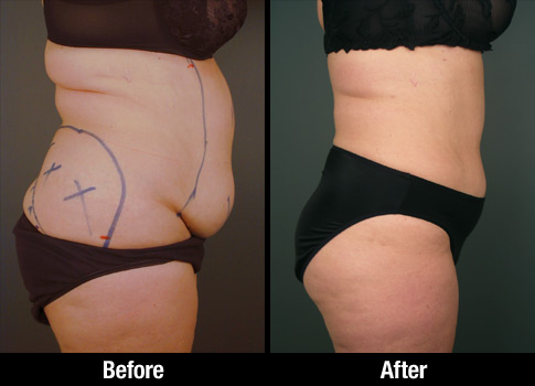 Click here to see more Abdominal Liposuction photos