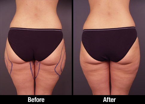 Thigh Liposuction Before After 0005