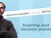 Scarring and Incision Points by Dr. David Amron