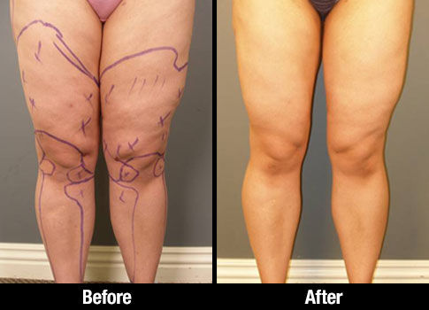 Click here to see more Anterior Thigh Liposuction photos