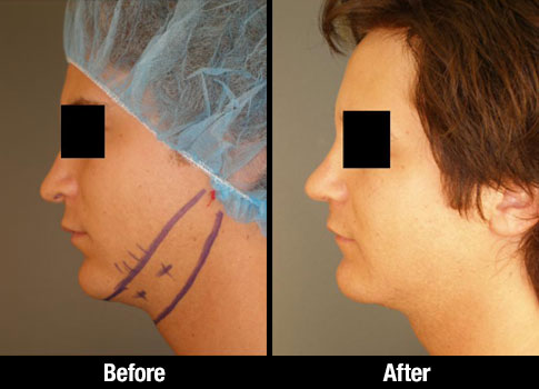 Neck Lipo Before After 0010