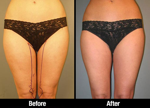 Click here to see more Inner Thigh Liposuction photos