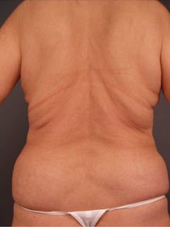 Back Liposuction After