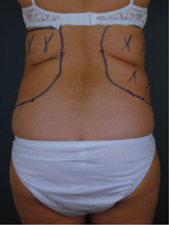 Back Liposuction Before