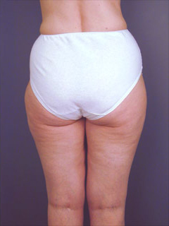 Buttocks Liposuction After