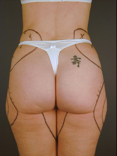 Buttocks Liposuction Before