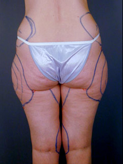 Hips Liposuction Before