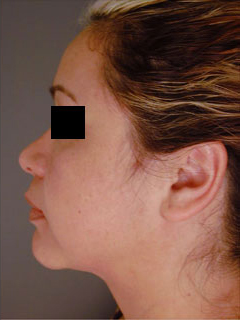 Neck Liposuction After