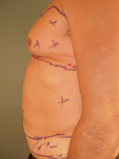 Chest Liposuction Before