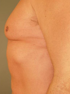Chest Liposuction After