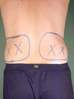 Flanks Liposuction Before