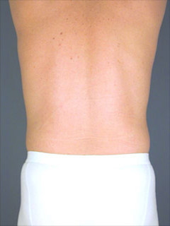 Flanks Liposuction After