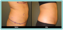 Abdomen Liposuction Gallery