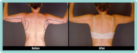 Arms Liposuction Gallery