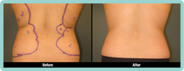 Click here to see more Back Liposuction photos