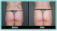 Buttocks Liposuction Gallery