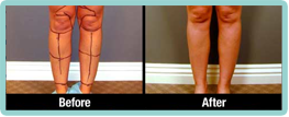 Calves & Ankles Liposuction Gallery