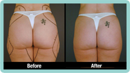 Hips Liposuction Gallery