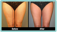 Thigh Liposuction Gallery